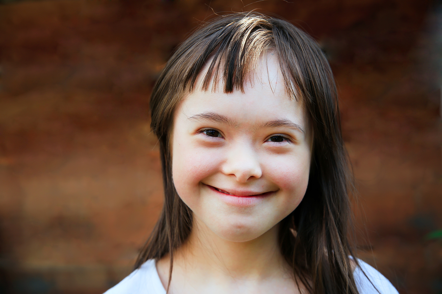 Down syndrome: 8 facts to know